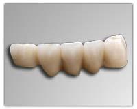 Cad Cam Pfm Semi Flexible Rpd Liwa Cast Partial Dental